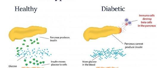 Dette bildet har et tomt alt-attributt, og filnavnet er diabetes1.jpg